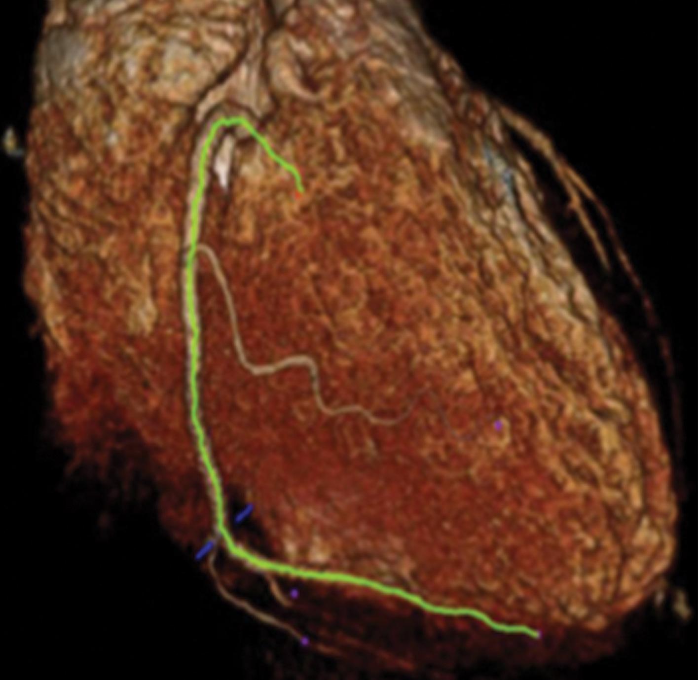 Νέα, μη επεμβατική τεχνική απεικόνισης εντοπίζει καρδιακή νόσο πριν τα συμπτώματα