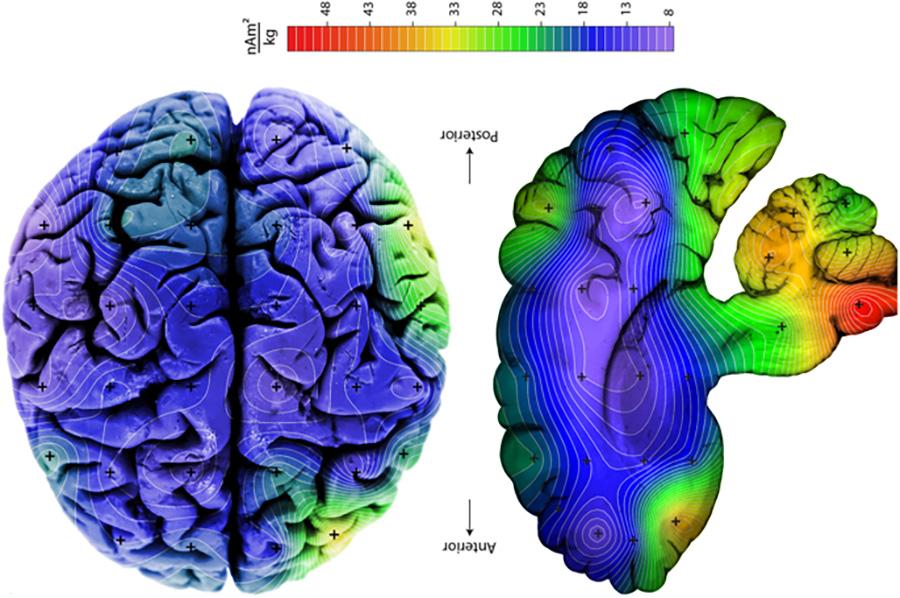 Πώς βρέθηκαν μαγνητικά σωματίδια στον εγκέφαλό μας;