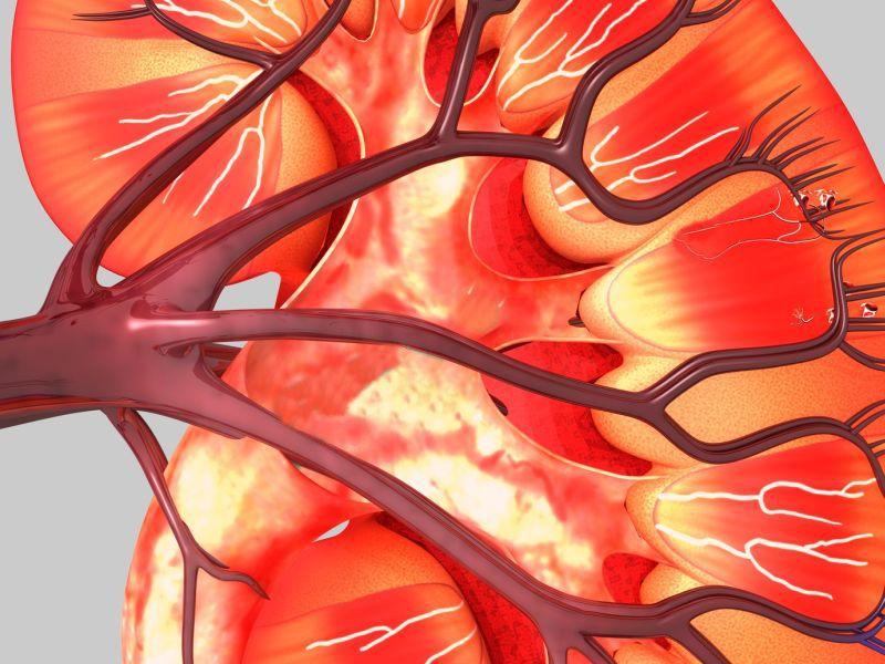 Τεχνική επιτρέπει τη μεταμόσχευση νεφρού από οποιοδήποτε δότη